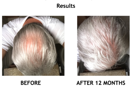 Up Hair Growth System Results previously Volumique Hair Growth solution
