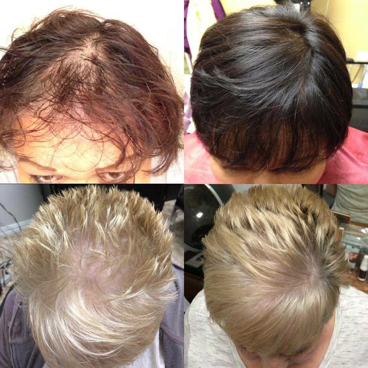 Volumique  3 Piece Hair Growth System
