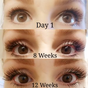 Natural remedies for thicker, longer, healthier eyelashes